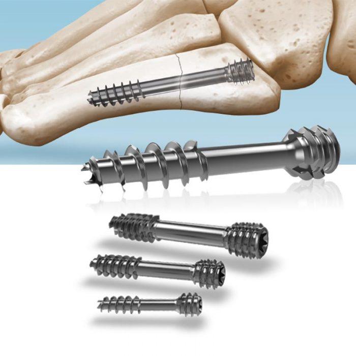 Compression_screw